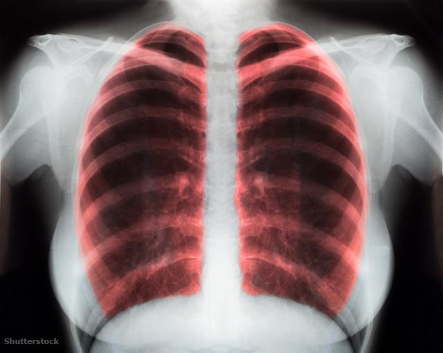 magas vérnyomás jelenség magas vérnyomás 3 fokú fogyatékosság