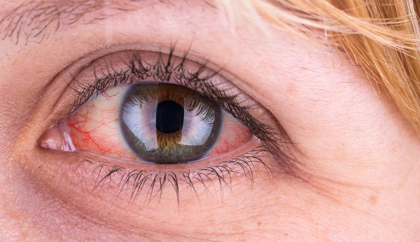 pitvari miokardiális hipertónia tanácsok azoktól akik megszabadultak a magas vérnyomástól