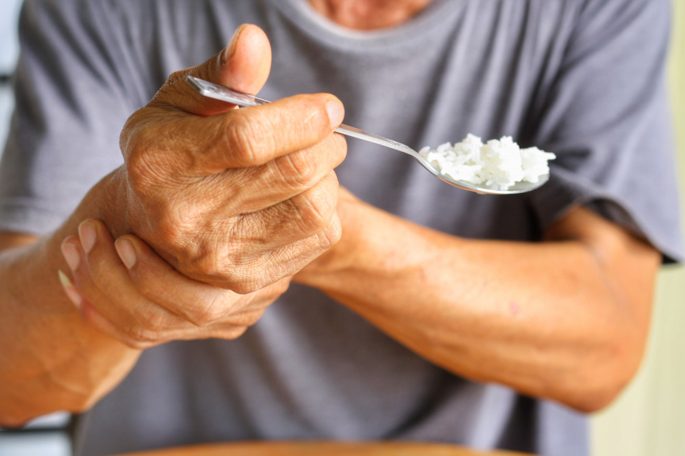 A Parkinson-kór kezelése