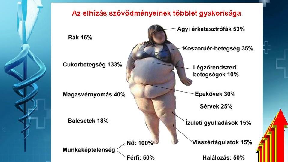 Így függ össze a túlsúly, a vérnyomás és a cukorbetegség