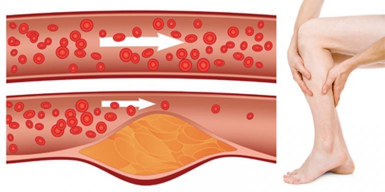 magnetoterápia a magas vérnyomás kezelésében)