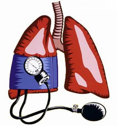 magas vérnyomás és fejtámlák magas vérnyomás ahol a fej fáj