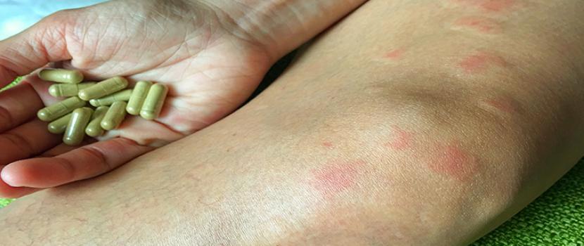 szisztémás lupus erythematosus magas vérnyomás)