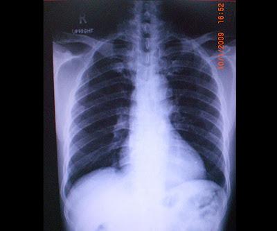 szív miokardiális hipertónia mi ez