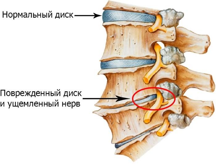 Plázs: Gyakorlatok magas vérnyomás ellen | hopmester.hu