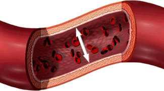 Magas vérnyomás - amit tudni érdemes - Szalka Praxis