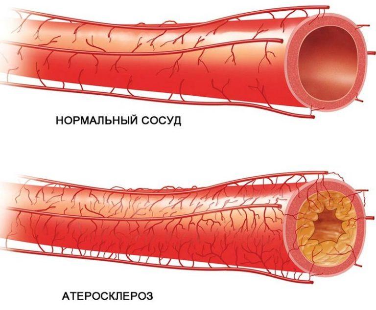 hipodinámia magas vérnyomás)