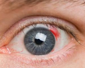 Mérje meg a vérnyomását, ha gyakran bevérzik a szeme