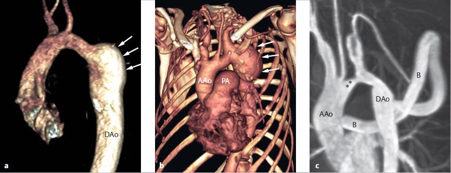 Aneurizma tünetei és kezelése