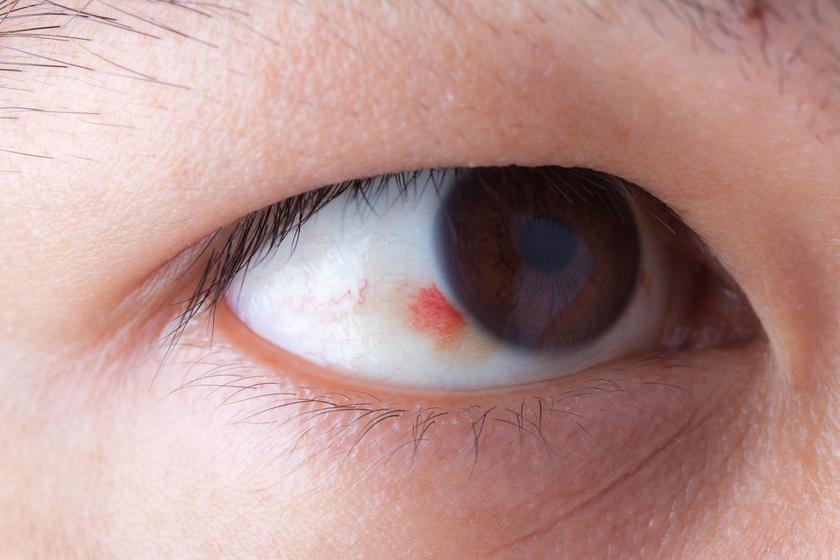 magas vérnyomás hatása a szemre