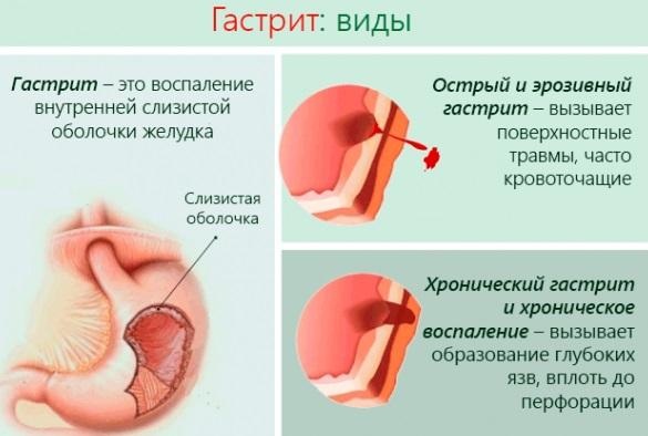 biológiailag aktív pontok magas vérnyomás esetén