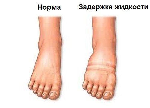 magas vérnyomás esetén a lábak megduzzadnak)