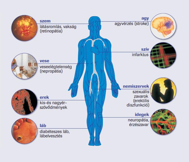 cukorbetegség magas vérnyomás retinopátia)