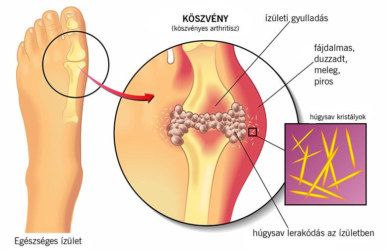hipertóniás arthrosis kezelése