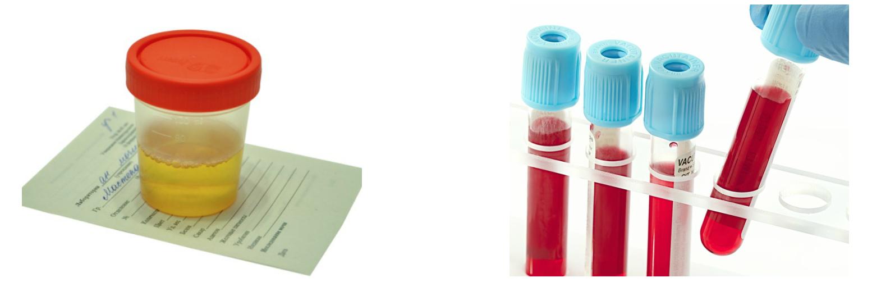 magas vérnyomás 2 fokozatú gyógyszeres kezelés a magas vérnyomás kezelésének hagyományos módszerei