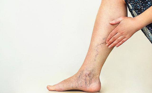 magas vérnyomás esetén a lábak megduzzadnak