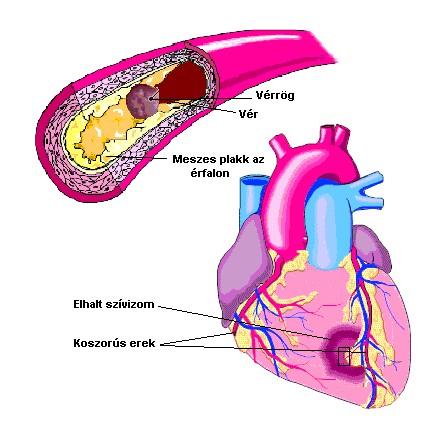 magas vérnyomás magas koleszterinszint)