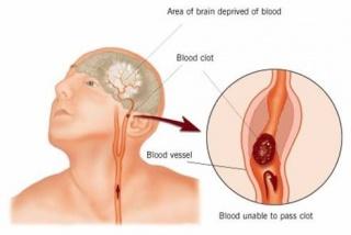 magas vérnyomás vasculitisszel